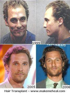 Matthew McConaughey Hair Transplant? Yay or Nay?