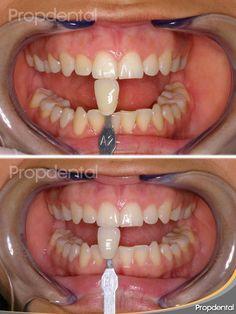 Blanqueamiento dental led en barcelona