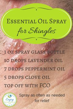 Five Best Essential Oils for Shingles If you or a loved one suffers with shingles, make this spray with lavender, peppermint and clove oils and use it to get relief from the pain and discomfort Essential Oils For Shingles, Essential Oils For Pain, Essential Oil Spray, Doterra Essential Oils, Young Living Essential Oils, Essential Oil Blends, Essential Oil Diffuser, Clove Essential Oil, Yl Oils