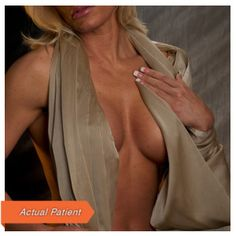 Placik's fat transfer augmentation provides a subtle boost to your breast rather than the dramatic changes silicone or saline breast implants. Learn more about this natural alternative. Fat Transfer, Board Certified Plastic Surgeons, Breast, Fashion, Moda, Fashion Styles, Fashion Illustrations