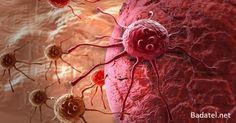 Väčšina príznakov rakoviny ukazuje na už jestvujúce ochorenie. Existujú však aj málo známe príznaky, ktoré ju odhalia ešte pred jej vznikom.