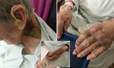 Care home resident, 92, left with horrific injuries after attack