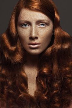 I have them too..freckle-faced redheads. She's gorgeous. :)