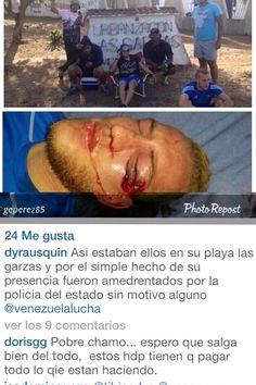 Reporta  @JuventudesBol: Kevin Bejarano fue atacado hoy por la Policía del Estado Bolívar por protestar pacíficamente pic.twitter.com/KBGsJVQ4Az