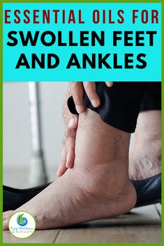If you are looking for swollen feet or edema remedies, then you may find these essential oils for swollen feet and ankles helpful for reducing foot and leg edema or water retention. Essential Oil For Swelling, Essential Oils For Pain, Essential Oil Uses, Doterra Essential Oils, Doterra Oil, Foot Remedies, Homeopathic Remedies, Health Remedies, Natural Remedies
