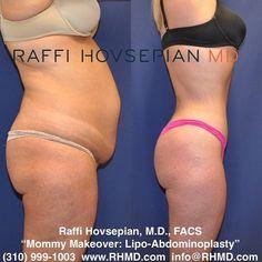 7 Best Post Lipo Result Images Plastic Surgeon Lipo Liposuction