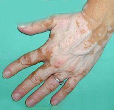 acido urico gota tratamiento natural dieta acido urico gota dieta acido urico alto pdf