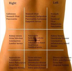 My tummy hurts! Good to know what the stomach pain may indicate. For my sister it was a Epigastric Hernia. Health And Beauty, Health And Wellness, Health Fitness, Fitness Foods, Health Care, Health Remedies, Home Remedies, Herbal Remedies, Epigastric Hernia