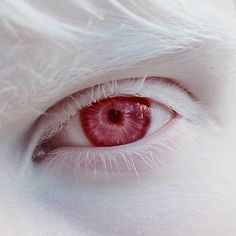 """malformalady: """" The eye of Amal Sofi. Albinism refers to a group of inherited conditions. People with albinism have little or no pigment in their eyes, skin, or hair. Modelo Albino, Excuse Moi, Fotografia Macro, Evil People, Pale Skin, White Aesthetic, Blue Eyes Aesthetic, Beautiful Eyes, Beautiful Images"""