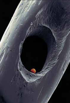 Five-day-old embryo in the eye of a needle. This is what conservative politicians believe is more important than the autonomy of the woman carrying it.