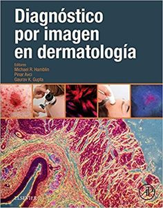Imaging in dermatology / edited by Michael R. Hamblin, Pinar Avci, Gaurav K. Arthritis, Trauma, Professor, Thriller, Page Number, Future Trends, Music Games, Clinic, The Book