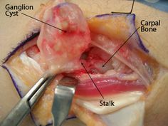 Pin By Jan Modric On Medical Conditions Ganglion Cyst