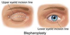La blépharoplastie où Chirurgie esthétique des paupières par Dr. Taha Rhounim Elidrissi
