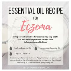 Essential Oils for Eczema - Treating Eczema Naturally Combat eczema symptoms with this simple essential oils for eczema recipe.Combat eczema symptoms with this simple essential oils for eczema recipe. Essential Oils For Eczema, Lemongrass Essential Oil, Essential Oil Uses, Doterra Essential Oils, Doterra Blends, Yl Oils, Dark Circle, Anti Aging, Eczema Relief