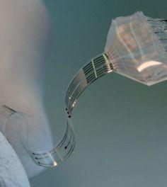 A gerinc implantátum, mely lehetővé teheti a bénult végtagok rehabilitációját