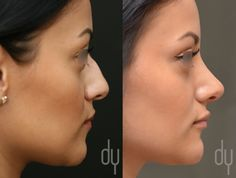 Beverly Hills Rhinoplasty Specialist Dr. Donald Yoo performed a primary rhinoplasty with patient's own tissue. (Autologous grafts) #rhinoplasty #beverlyhills #90210