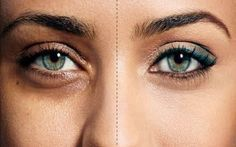 Φυσική λύση για πρησμένα, με μαύρους κύκλους, και σακούλες, μάτια