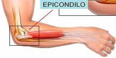 Resultado de imagen para epicondilitis