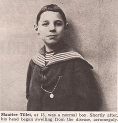 Maurice Tillet - Before Acromegaly - Age most likely his school uniform while attending St. Philip Niri in Moscow, Russia just before he and his mother left due to the Russian Revolution in Angel In French, Human Zoo, Sideshow Freaks, Russian Revolution, Angel Pictures, People Of Interest, Shrek, Old Photos, Famous People