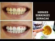 Dişleri Bembeyaz Yapan Ağız Kokusundan Kurtaran MUCİZE !!! - YouTube