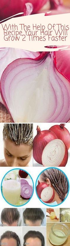With The Help Of This Recipe Your Hair Will Grow 2 Times Faster If having a long and shiny hair is still only a dream for you we have the best recipe for you. Can you possibly imagine that red onions can help you reduce hair loss stop graying and also sti Fast Hairstyles, Haircuts, Hair Loss Remedies, Prevent Hair Loss, Shiny Hair, Grow Hair, Healthy Hair, Stay Healthy, Healthy Living