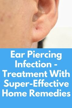 Ear Piercing Infection - Treatment With Super-Effective Home Remedies Any kind of piercings involves damage to the skin tissue. As a reaction to the skin tissue damage, the cells produce histamine which can lead to inflammation and swelling. Ear piercings may also get infected due to the presence of bacterial and fungal spores. In such cases, the piercing may take a lot of time …