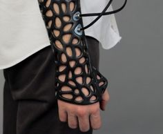 3D Printed Casts Enable Ultrasound Technology To Be Used To Heal Bones