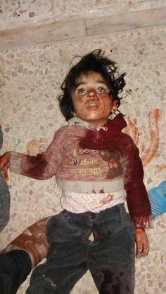 cosecuencia de la guerra...niño israel