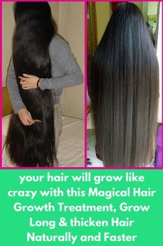 your hair will grow like crazy with this Magical Hair Growth Treatment, Grow Long & thicken Hair Naturally and Faster Today I will share about how to grow long and thick hair naturally and faster. With a the plication of this mask hair growth will increase drastically. And you will get result in less than 1 month. For best-desired resuls do this remedy twice in a week. Ingredients, you will need- 4 tablespoon of onion juice …