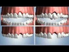 ¿PERDISTE UN DIENTE? Aquí algunas alternativas de reemplazo   Directorio Odontológico