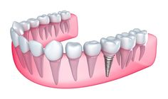 A dental implant set up procedure is an outpatient surgical procedure that is performed in multiple stages.
