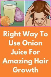 Right Way To Use Onion Juice For Amazing Hair Growth This hair rinse & hair mask is a combination of Curry leaves, onion juice , ginger and fenugreek seeds and is an extremely useful remedy for fast hair growth. This remedy will not only solve all hair r Onion Hair Growth, Hair Mask For Growth, Hair Remedies For Growth, Hair Loss Remedies, Onion Juice For Hair, Hair Rinse, Bald Patches, Hair Loss Women, Hair Breakage