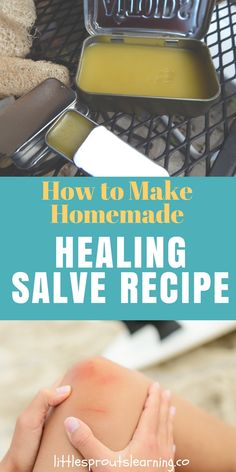 Healing salve is great for healing up chapped lips, dry skin, cuts, scrapes, bruises or just about anything else you can think of. It helps heal bites, burns and other skin irritations as well. Learn how to make homemade healing salve for yourself and you won't need to buy antibiotic ointment again! Herbal Remedies, Natural Remedies, Cold Remedies, Health Remedies, Salve Recipes, Homemade Deodorant, Wound Healing, Healing Oils, Natural Parenting