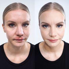 Peitä iho-ongelmat täydellisesti