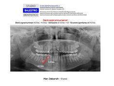 Casi clinici ortodontici Denti soprannumerari http://www.studiodentisticobalestro.com/2013/04/denti-soprannumerari.html