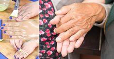 Kliknij i przeczytaj ten artykuł! Holding Hands, Therapy, Health