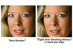 Stop Smoking Benefits Discover How to Quit Smoking in as Little as 7 Days Even if You've been a Chain Smoker for the Past 20 Years with No Relapses, No extra MONEY Needed, and a 98% Success Rate, Guaranteed! motivation-to-quit  stop smoking ,stop cigarette ,health http://quitsmokingmagicnow.blogspot.com