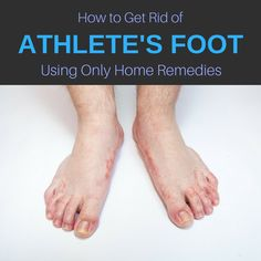Athlete's foot occurs when a fungus, Tinea pedis, makes its way on your feet and brings itching, stinging or burning. It can grow on top of the feet, between the toes and fingers, or on the toenails. Here are some of the athlete's foot symptoms: the area will go red, and you will experience white …