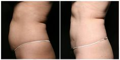 Before & After CoolSculpting non-surgical body contouring treatment