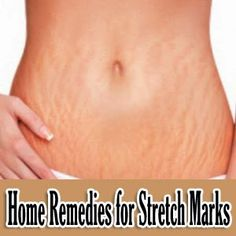 Home Remedies for Stretch Marks « Tips Park