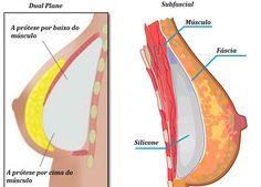 Calcification wire breast localization