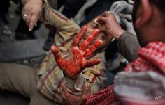 A wounded anti-government protester holds up his bloodied hand as he is carried by others back from clashes with pro-government supporters near the Egyptian Museum in downtown Cairo, Egypt, Thursday, Feb. 3, 2011. (AP Photo/Ben Curtis) Photography