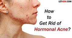How to get rid of hormonal acne? Natural Home remedies for hormonal acne treatment. Prevent Hormonal acne. Stop hormonal acne on chin. Get rid of acne fast.