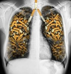 """When you smoke a cigarette, you can feel a mental state known as """"high"""", this thanks to the nicotine that is administered to the body. The nicotine that is present in the cigarette can last about 8 hours in the… Continue Reading → Signs Of Lung Cancer, Lung Cancer Symptoms, Anti Tabaco, Lung Cancer Awareness Month, World No Tobacco Day, Nicotine Addiction, Anti Smoking, Smoking Kills, Cancer Treatment"""
