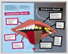 Smoking leads to oral health problems including: Bad breath Tooth discoloration Increased build up of plaque and tartar on the teeth Inflammation of the salivary gland openings on the roof of the...