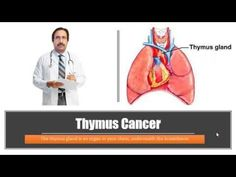 Thymus Cancer : Causes, Diagnosis, Symptoms, Treatment, Prognosis - WATCH VIDEO HERE -> http://bestcancer.solutions/thymus-cancer-causes-diagnosis-symptoms-treatment-prognosis    *** thymus cancer causes ***   LIKE | COMMENT | SHARE | SUBSCRIBE For more info visit ====================================== Thymus Cancer, thymoma , thymic carcinoma ====================================== Video credits to the YouTube channel owner