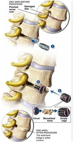 Lumbar Inter-Body Fusion (IBF) is is generally used for the treatment of back pain caused by degenerative disc disease. When the procedure is performed from the front (anterior) of the spine, a minimally- invasive endoscopic technique may be used. #spine #health http://www.dralexjimenez.com/the-difference-between-a-disc-herniation-and-a-disc-bulge/