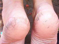 10 Simple Home Remedies For Cracked Heels - They look ugly and can be very painful. These are good, natural remedies. 10 Simple Home Remedies For Cracked Heels - They look ugly and can be very painful. These are good, natural remedies. Homemade Beauty, Diy Beauty, Homemade Food, Beauty Stuff, Beauty Secrets, Beauty Care, Beauty 101, Beauty Nails, Weight Loss Meals