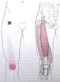 Rect Femoris Trigger Point Diagram