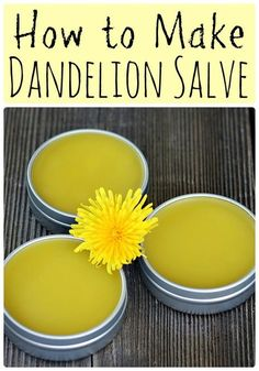When dandelions are blooming make this healing dandelion salve recipe using foraged dandelions! This salve has many medicinal benefits and healing properties, and it good for all kinds of aches and pains. This is such an easy recipe for any beginner herba Natural Home Remedies, Natural Healing, Herbal Remedies, Health Remedies, Holistic Remedies, Cold Remedies, Natural Herbs, Natural Medicine, Herbal Medicine